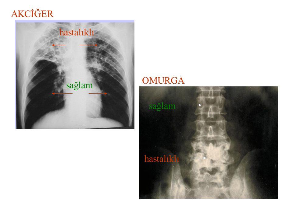 AKCİĞER hastalıklı OMURGA OMURGA sağlam sağlam hastalıklı
