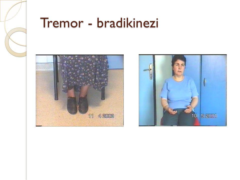 Tremor - bradikinezi