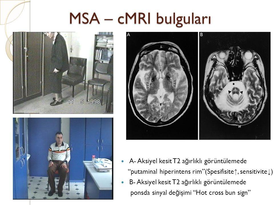 MSA – cMRI bulguları A- Aksiyel kesit T2 ağırlıklı görüntülemede