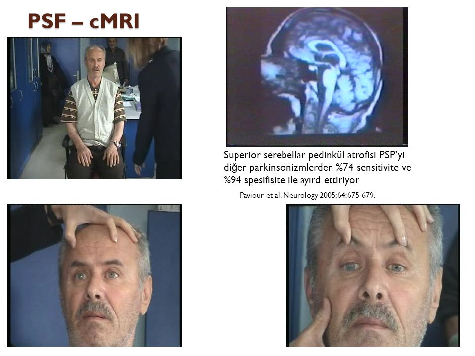PSF – cMRI Paviour et al. Neurology 2005;64:675-679.