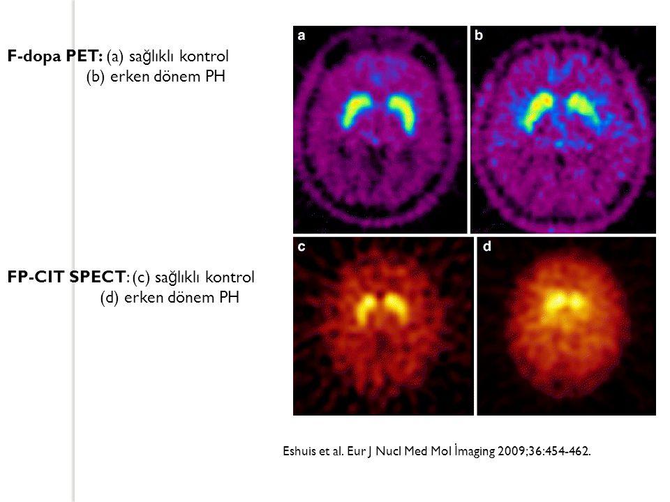 F-dopa PET: (a) sağlıklı kontrol (b) erken dönem PH