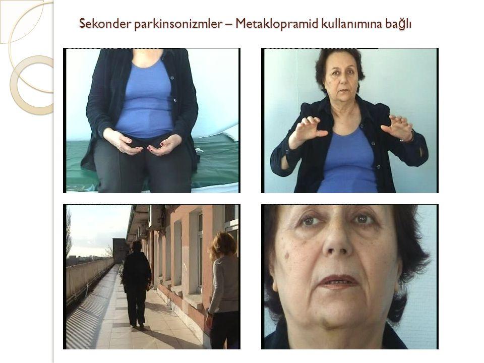 Sekonder parkinsonizmler – Metaklopramid kullanımına bağlı