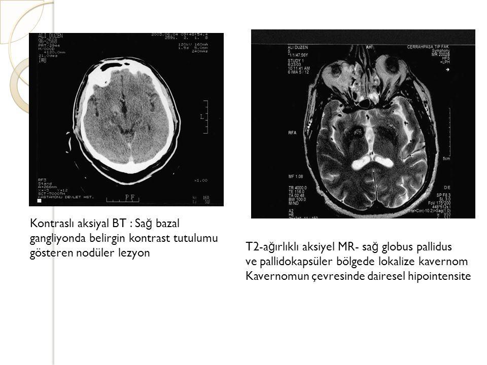 T2-ağırlıklı aksiyel MR- sağ globus pallidus
