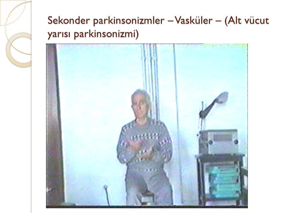 Sekonder parkinsonizmler – Vasküler – (Alt vücut yarısı parkinsonizmi)