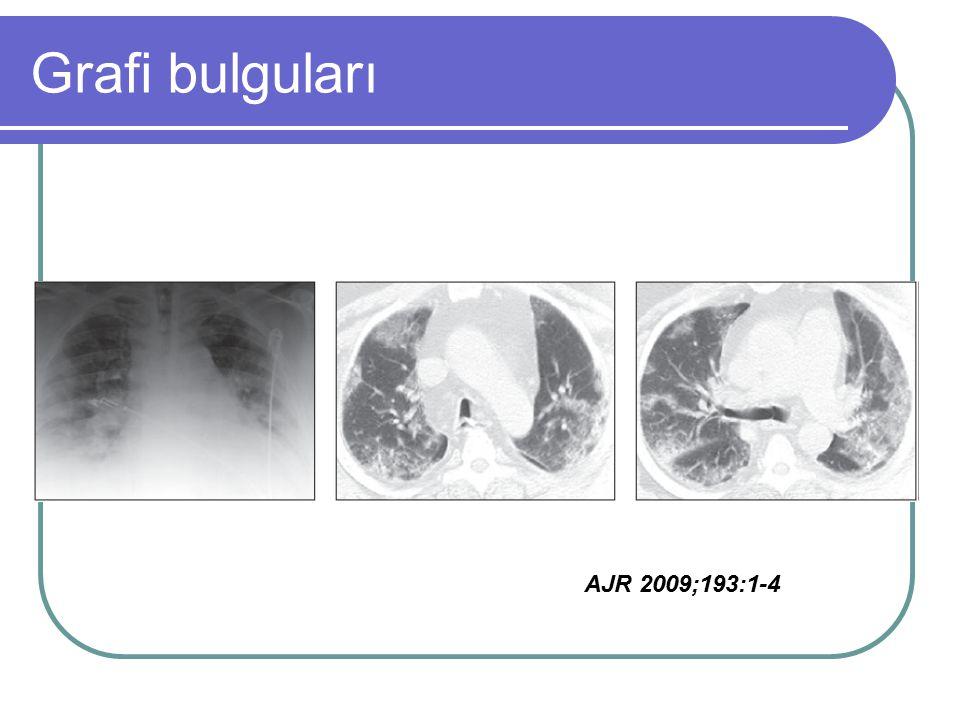 Grafi bulguları AJR 2009;193:1-4