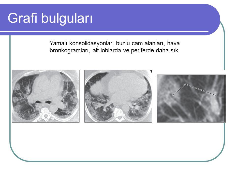 Grafi bulguları Yamalı konsolidasyonlar, buzlu cam alanları, hava bronkogramları, alt loblarda ve periferde daha sık.