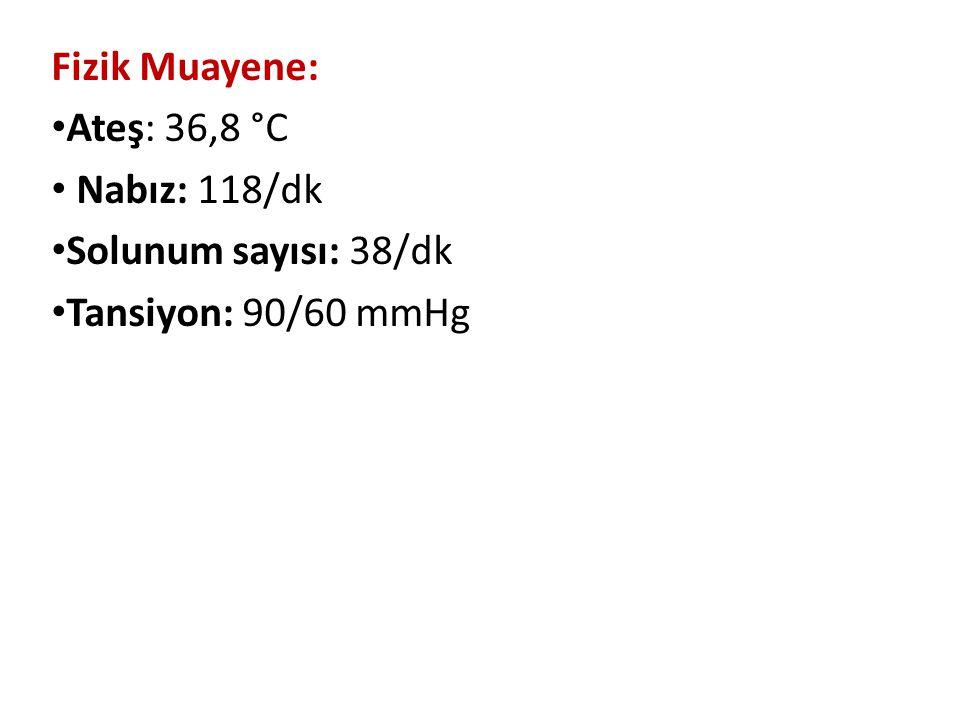 Fizik Muayene: Ateş: 36,8 °C Nabız: 118/dk Solunum sayısı: 38/dk Tansiyon: 90/60 mmHg