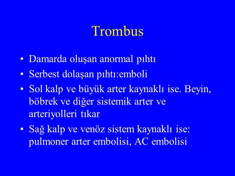 Trombus Damarda oluşan anormal pıhtı Serbest dolaşan pıhtı:emboli