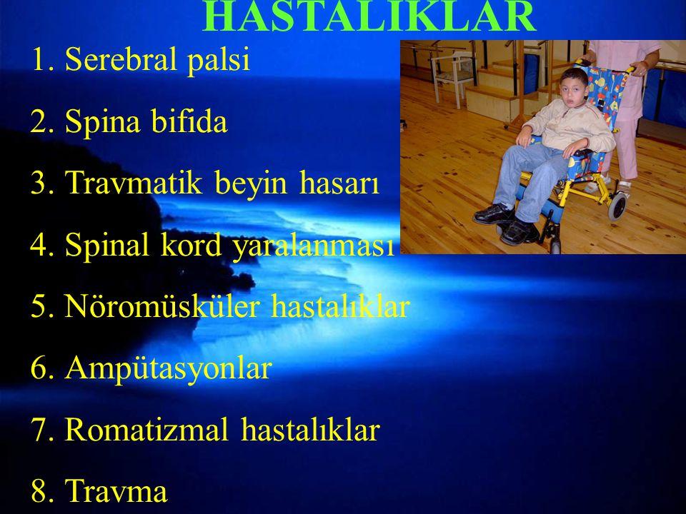Torakal instabilite kriterleri-2
