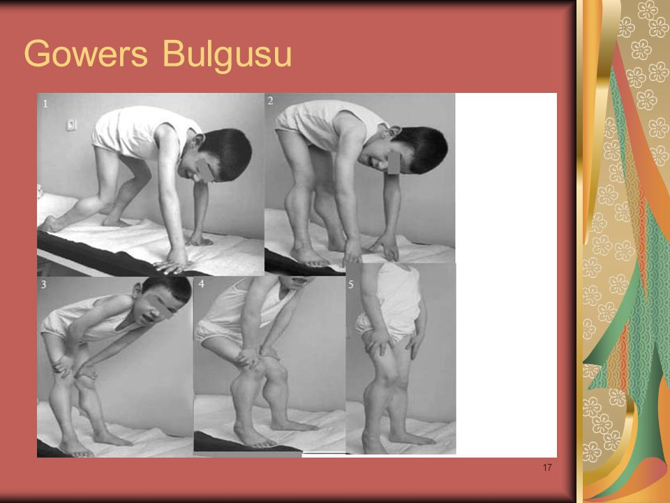 Gowers Bulgusu