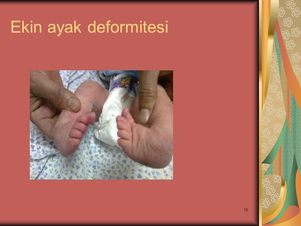 Ekin ayak deformitesi
