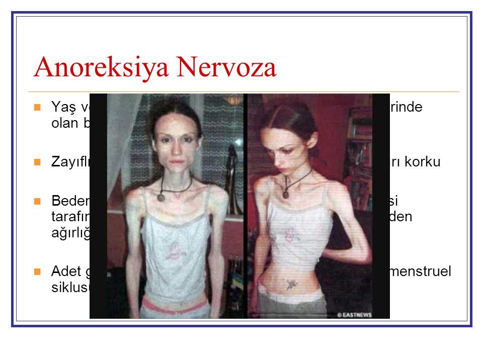 Anoreksiya Nervoza Yaş ve boya göre minimal normal ağırlıkta veya üzerinde olan beden ağırlığını korumayı reddetme.