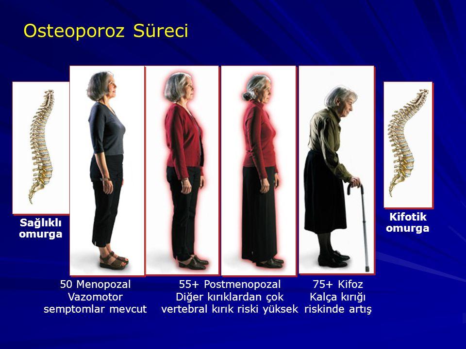 Osteoporoz Süreci Sağlıklı omurga Kifotik omurga 50 Menopozal