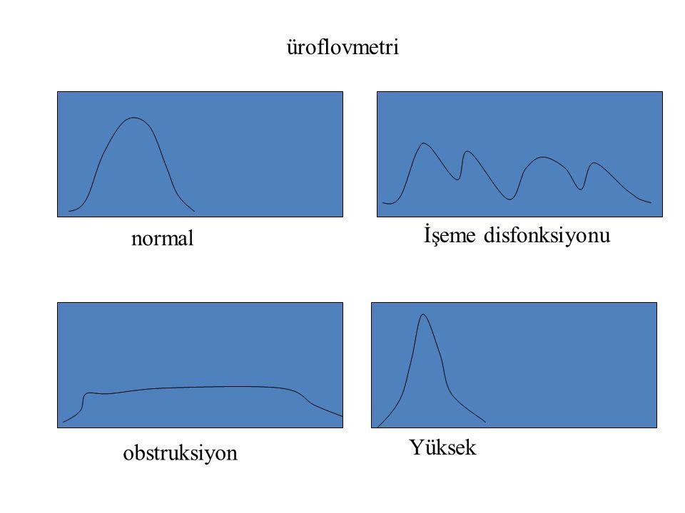 üroflovmetri normal İşeme disfonksiyonu Yüksek obstruksiyon