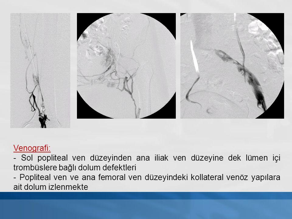 Venografi: - Sol popliteal ven düzeyinden ana iliak ven düzeyine dek lümen içi trombüslere bağlı dolum defektleri.