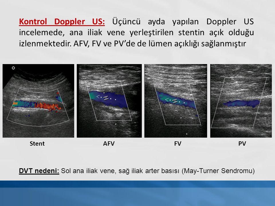 Kontrol Doppler US: Üçüncü ayda yapılan Doppler US incelemede, ana iliak vene yerleştirilen stentin açık olduğu izlenmektedir. AFV, FV ve PV'de de lümen açıklığı sağlanmıştır