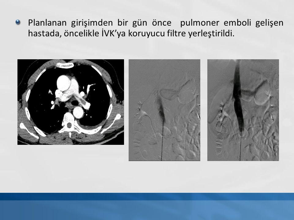 Planlanan girişimden bir gün önce pulmoner emboli gelişen hastada, öncelikle İVK'ya koruyucu filtre yerleştirildi.