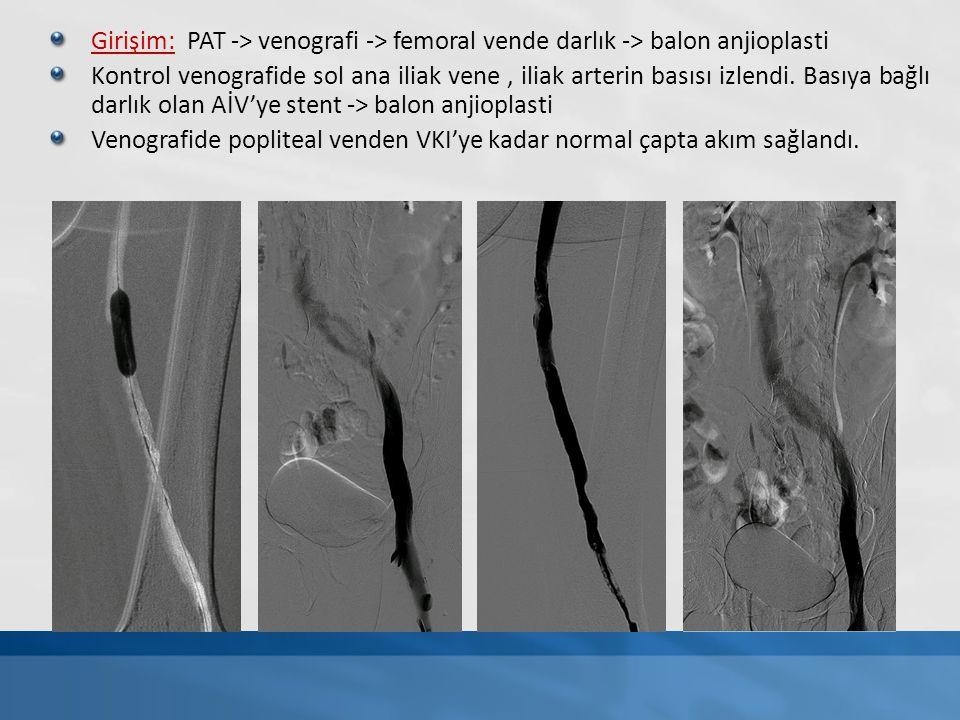 Girişim: PAT -> venografi -> femoral vende darlık -> balon anjioplasti