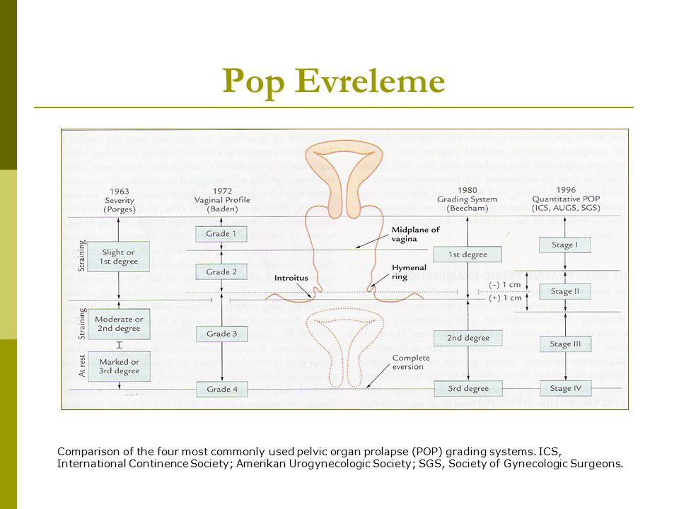 Pop Evreleme