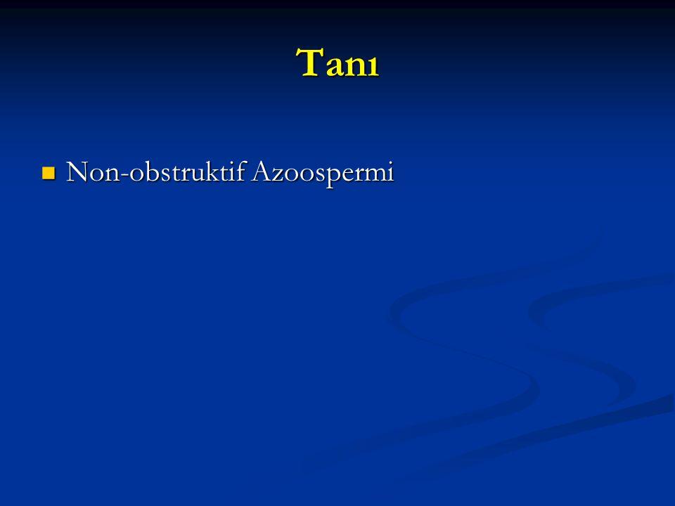 Tanı Non-obstruktif Azoospermi 17