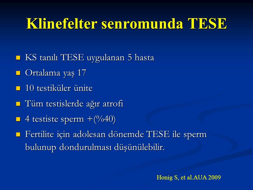 Klinefelter senromunda TESE