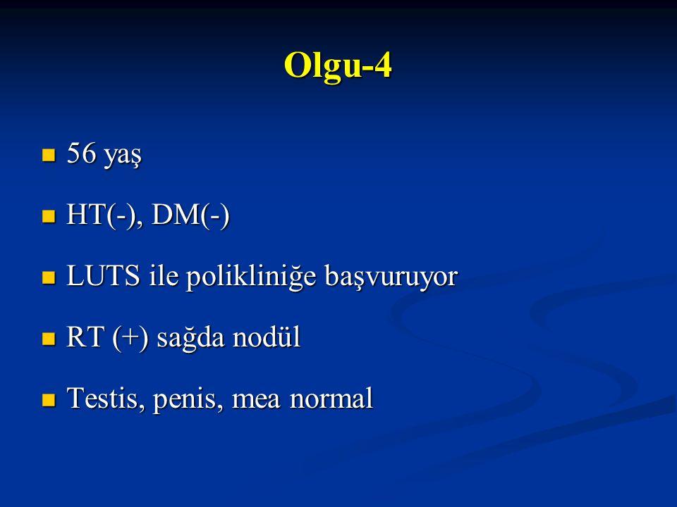 Olgu-4 56 yaş HT(-), DM(-) LUTS ile polikliniğe başvuruyor