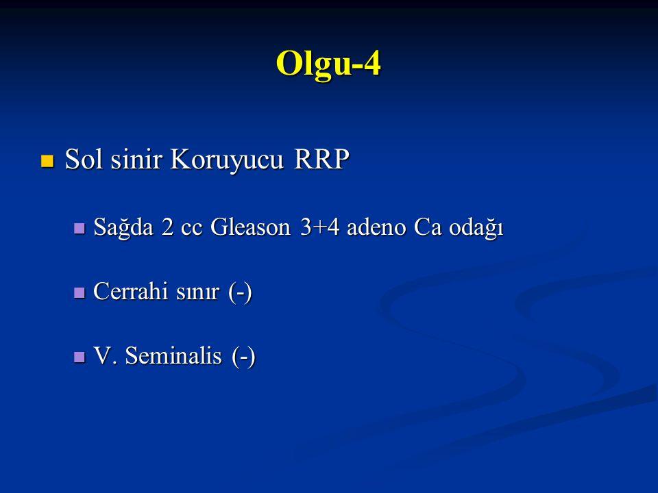 Olgu-4 Sol sinir Koruyucu RRP Sağda 2 cc Gleason 3+4 adeno Ca odağı