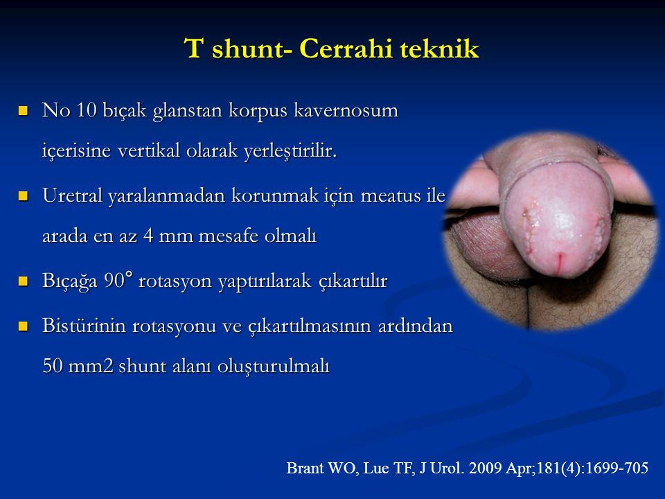 T shunt- Cerrahi teknik