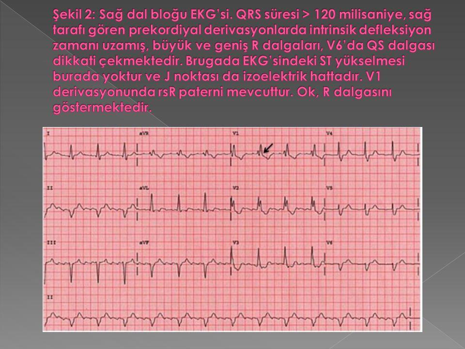 Şekil 2: Sağ dal bloğu EKG'si