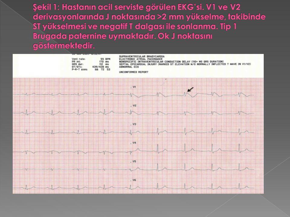 Şekil 1: Hastanın acil serviste görülen EKG'si