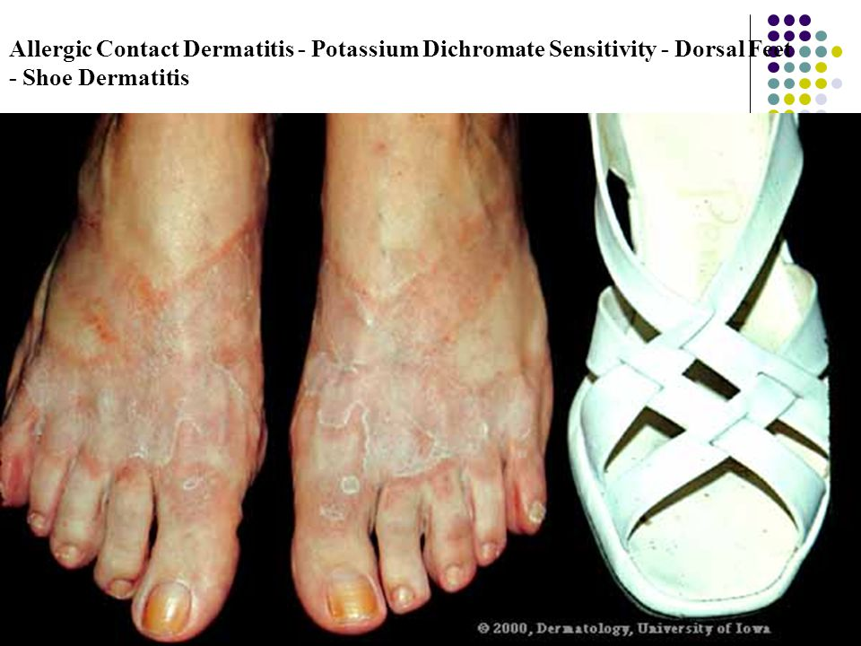 Allergic Contact Dermatitis - Potassium Dichromate Sensitivity - Dorsal Feet - Shoe Dermatitis
