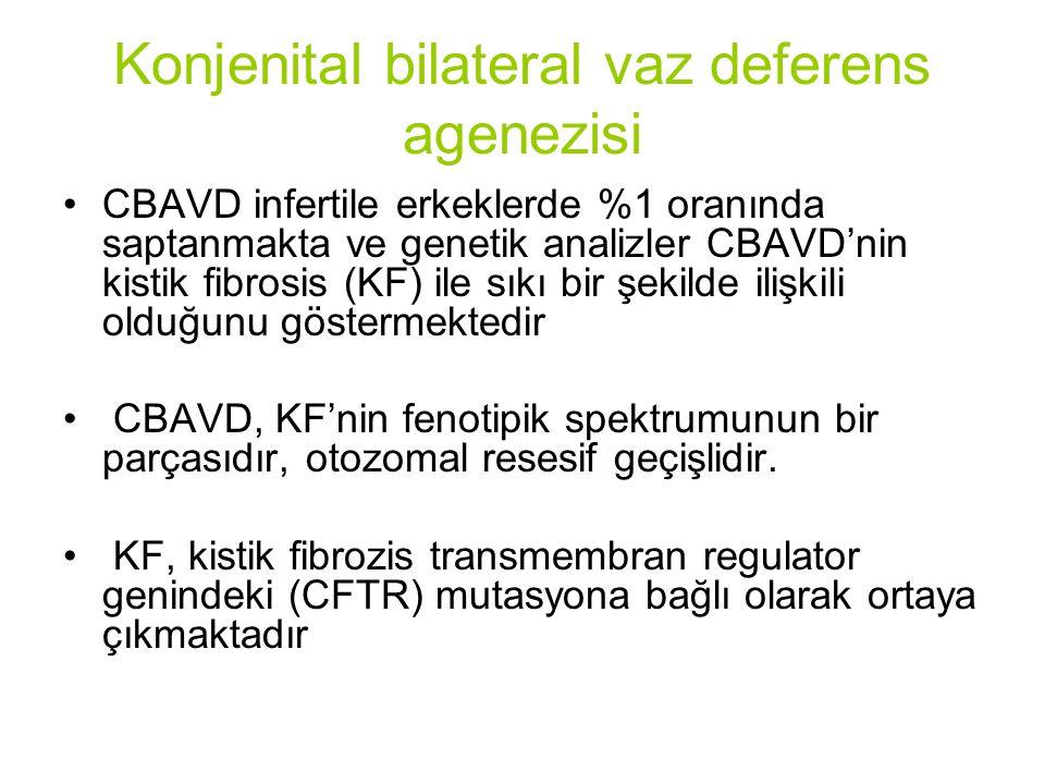 Konjenital bilateral vaz deferens agenezisi