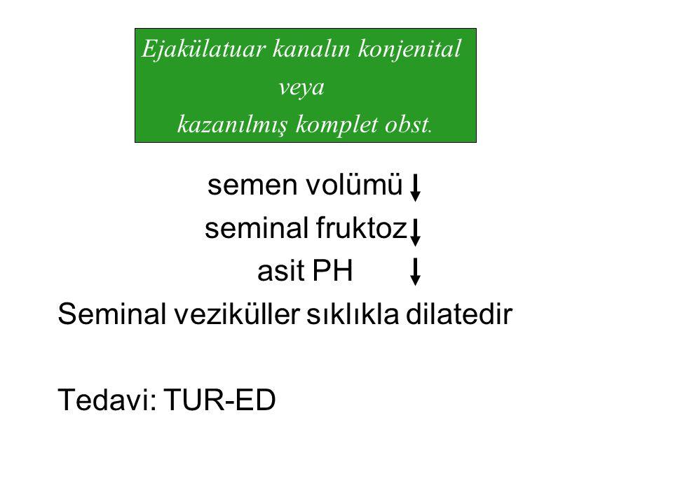 Seminal veziküller sıklıkla dilatedir Tedavi: TUR-ED