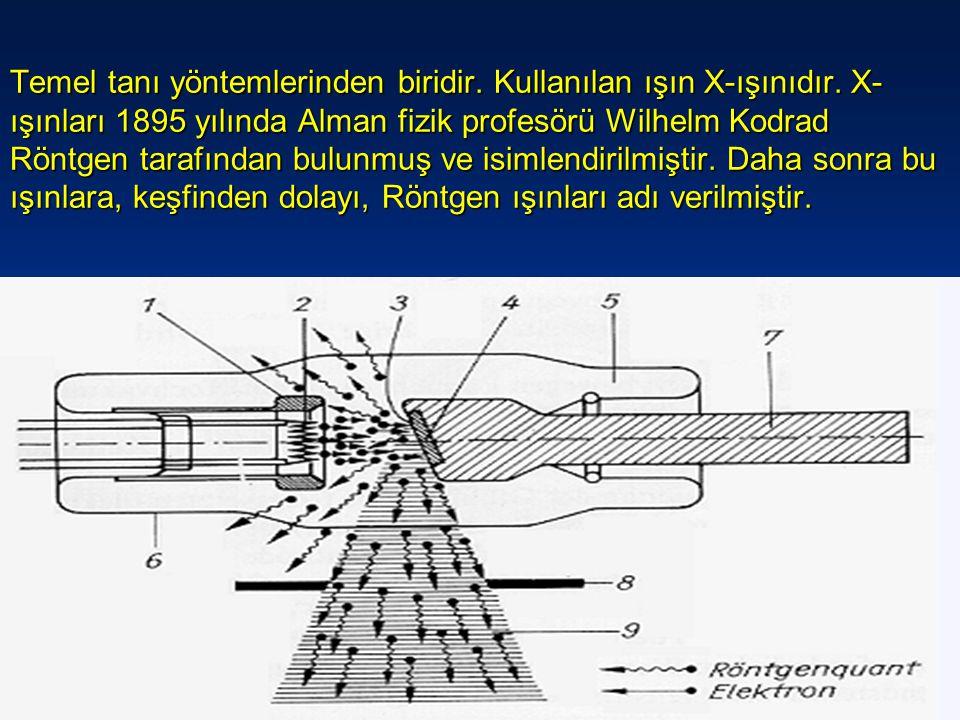 Temel tanı yöntemlerinden biridir. Kullanılan ışın X-ışınıdır