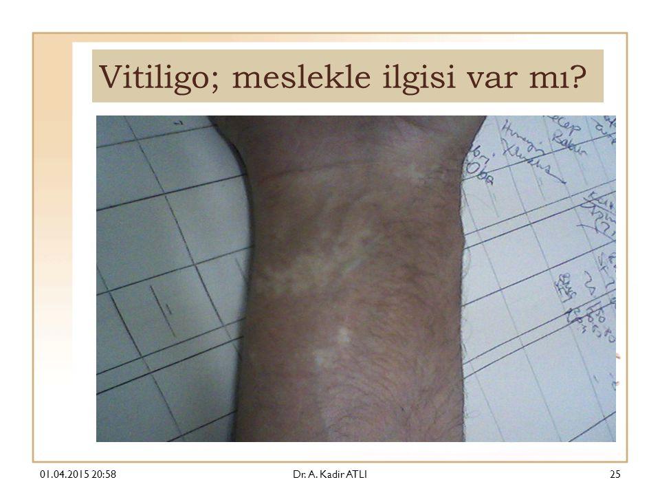 Vitiligo; meslekle ilgisi var mı