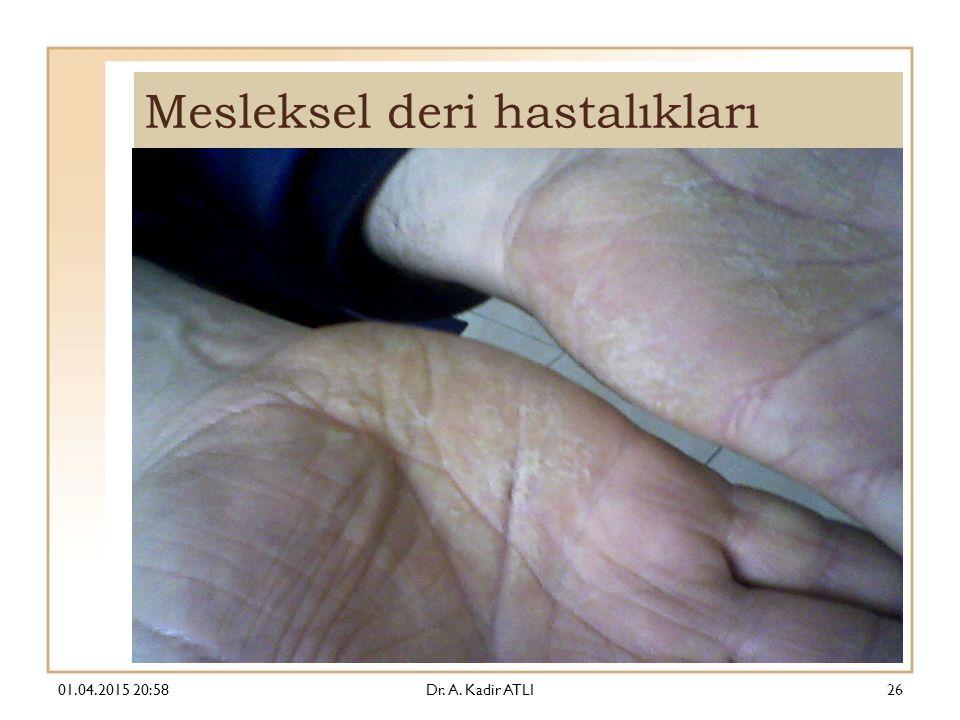 Mesleksel deri hastalıkları