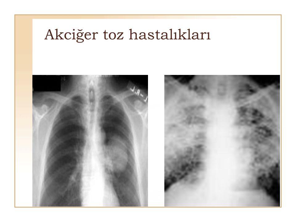 Akciğer toz hastalıkları