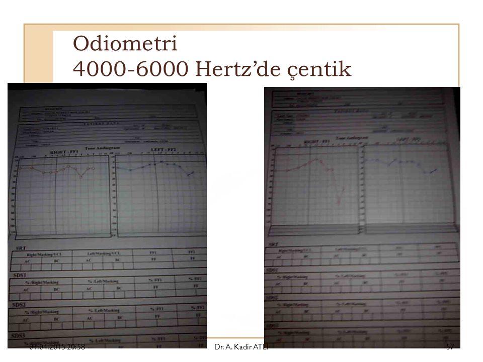 Odiometri 4000-6000 Hertz'de çentik