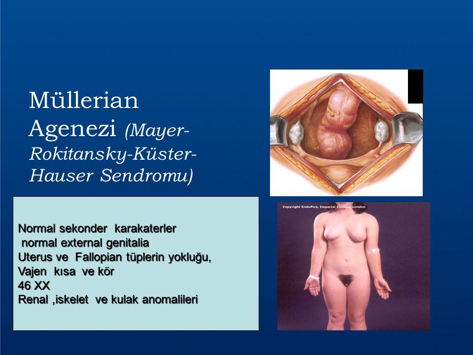Müllerian Agenezi (Mayer-Rokitansky-Küster-Hauser Sendromu)