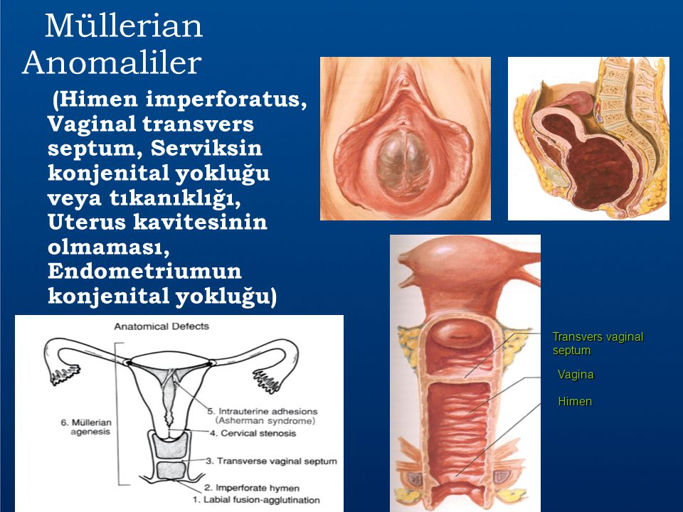 Müllerian Anomaliler