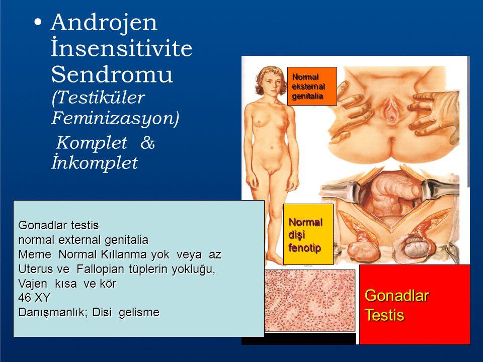 Androjen İnsensitivite Sendromu (Testiküler Feminizasyon)