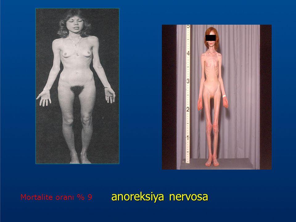anoreksiya nervosa Mortalite oranı % 9 ANOREKSİYA NERVOZA