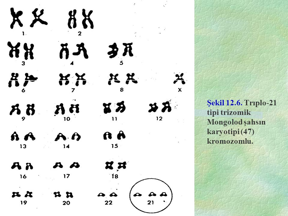 Şekil 12.6. Trıplo-21 tipi trizomik Mongolod şahsın karyotipi (47) kromozomlu.
