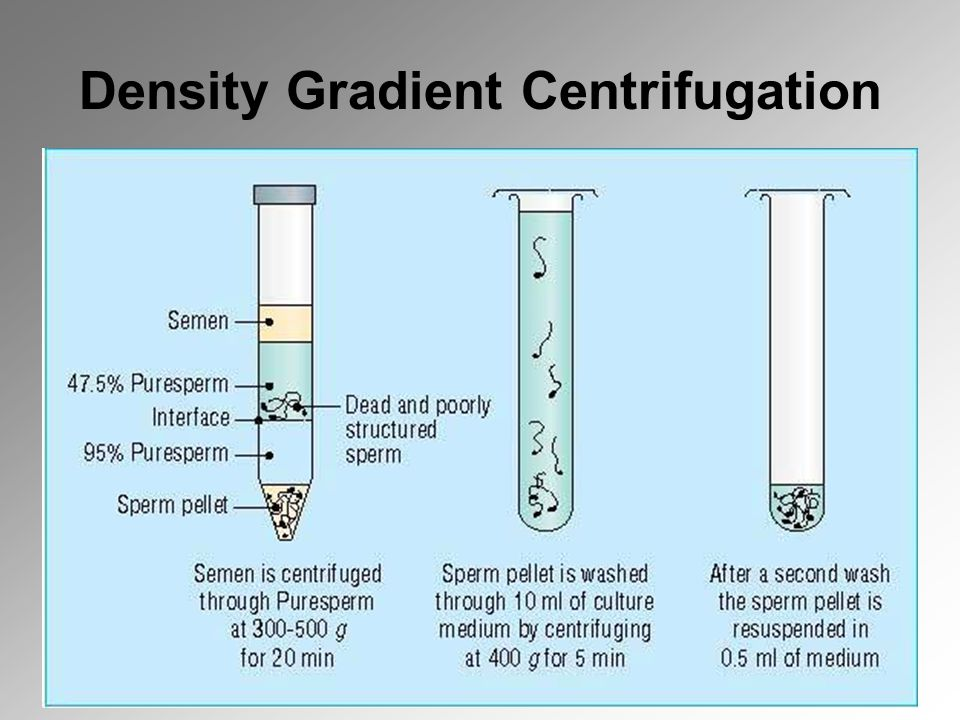 Density Gradient Centrifugation