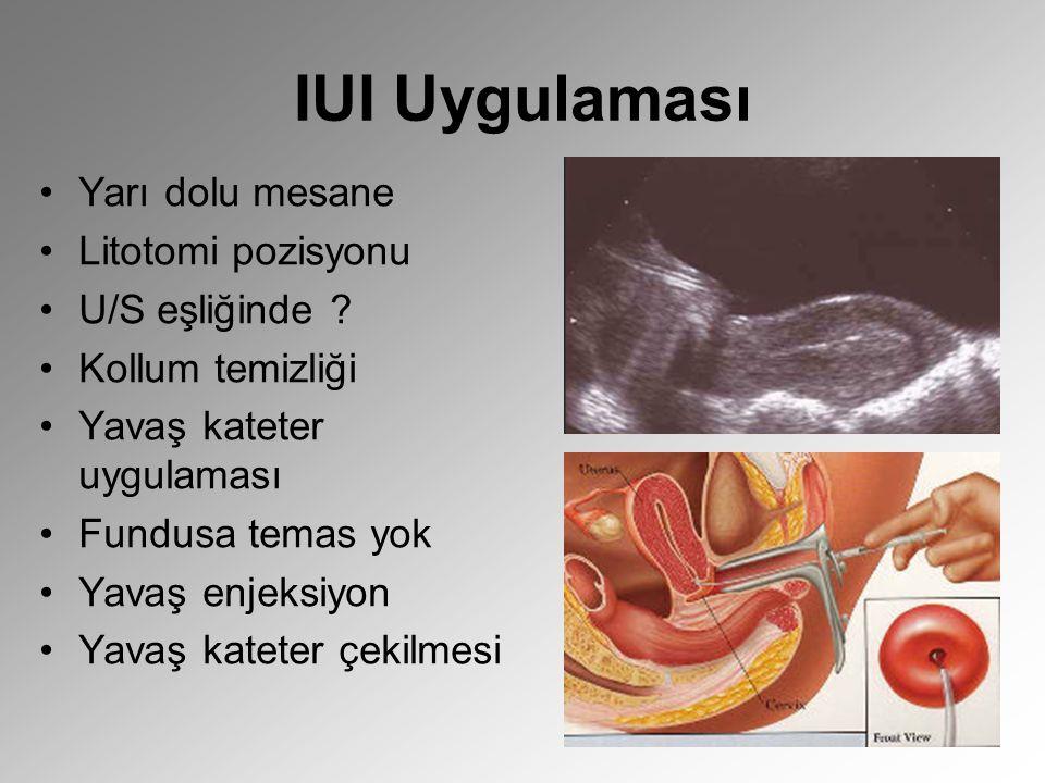 IUI Uygulaması Yarı dolu mesane Litotomi pozisyonu U/S eşliğinde