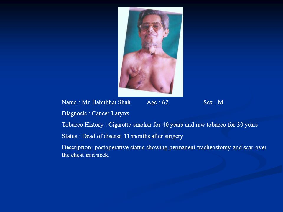 Name : Mr. Babubhai Shah Age : 62 Sex : M