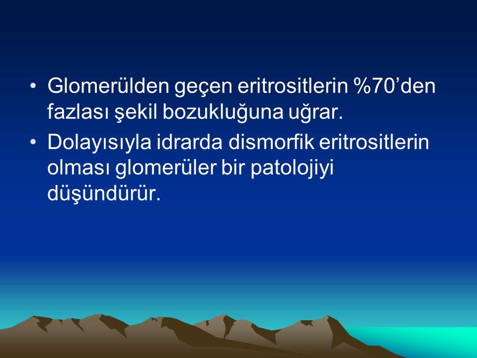 Glomerülden geçen eritrositlerin %70'den fazlası şekil bozukluğuna uğrar.
