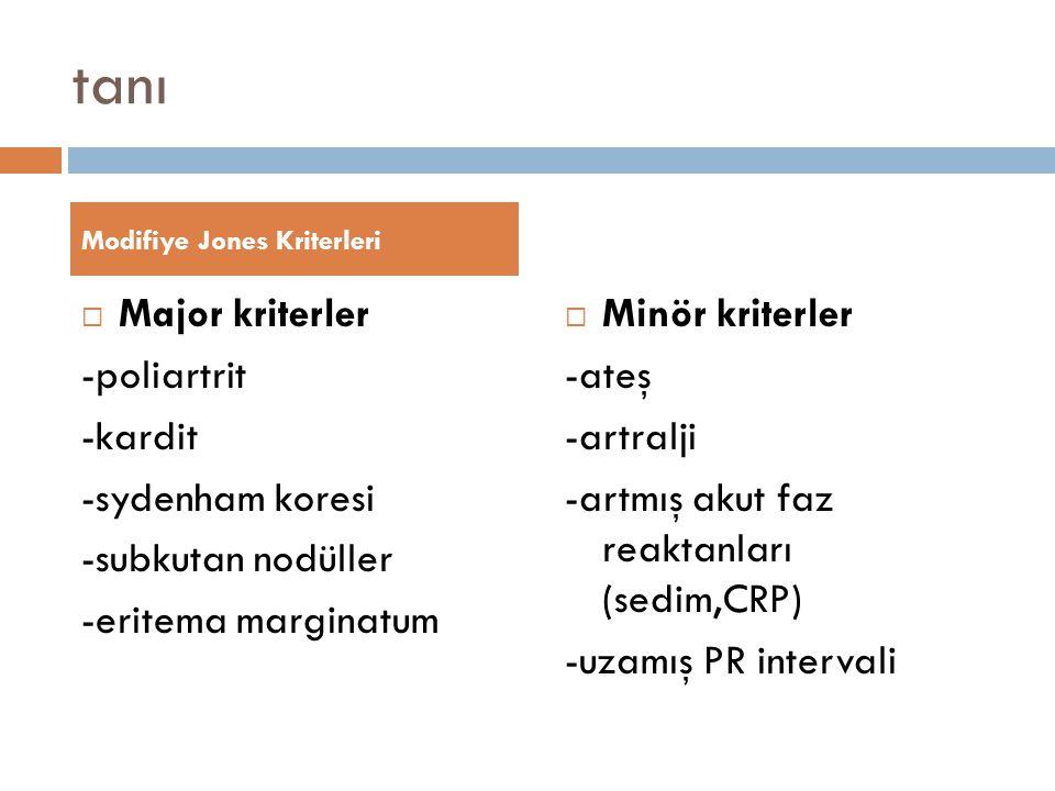 tanı Major kriterler -poliartrit -kardit -sydenham koresi