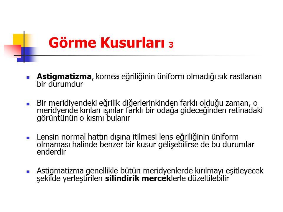 Görme Kusurları 3 Astigmatizma, komea eğriliğinin üniform olmadığı sık rastlanan bir durumdur.