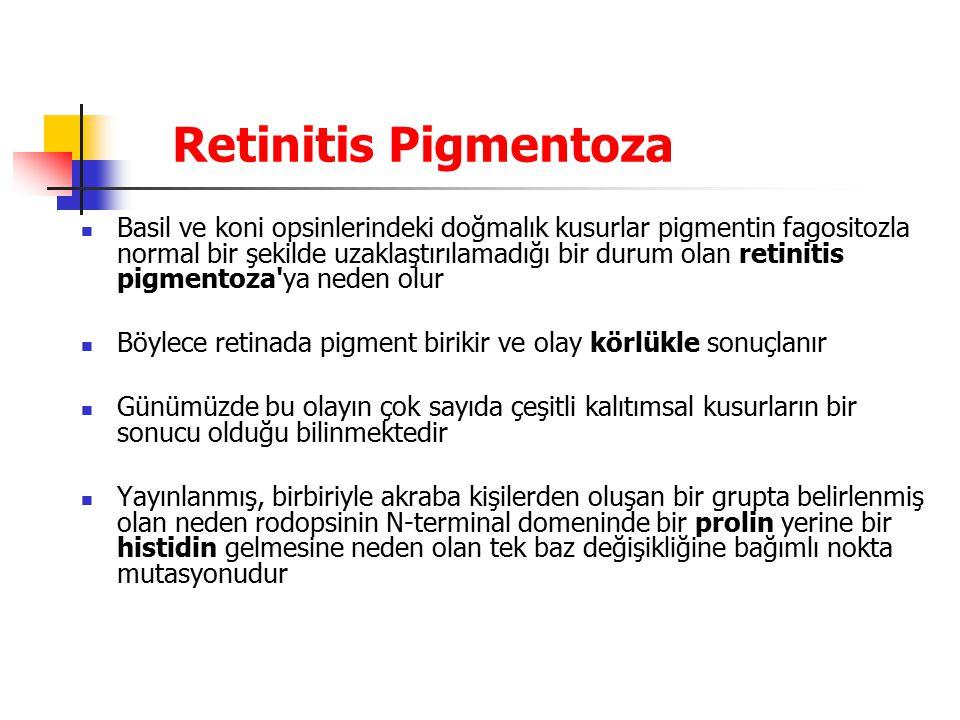 Retinitis Pigmentoza